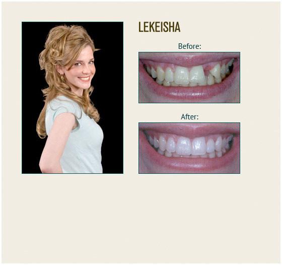 smile-gallery-lekeisha