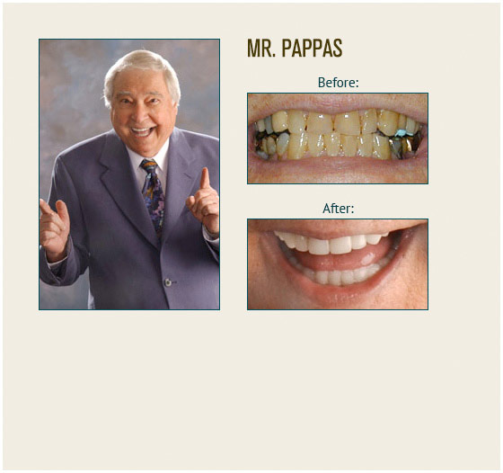 smile-gallery-pappas