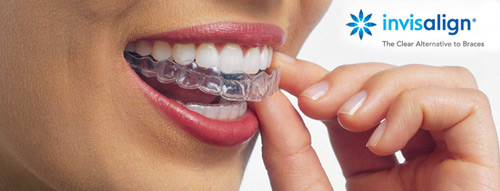 Invisalign Clear Braces Tulare, CA