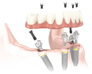 All-On-4 Dental Implant Dentures Tulare