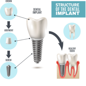 Dental Implants in Tulare
