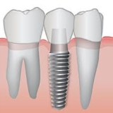 Dental Implants Tulare, CA