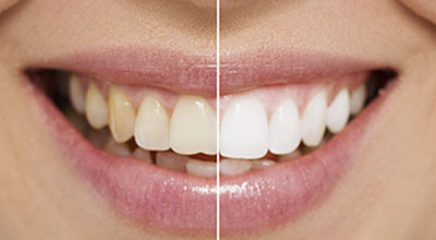 Teeth Whitening & Opalescence Tulare